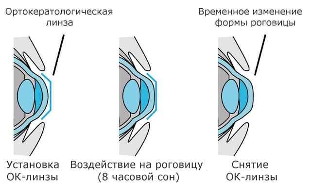 воздействие на роговицу оратокерамической линзы